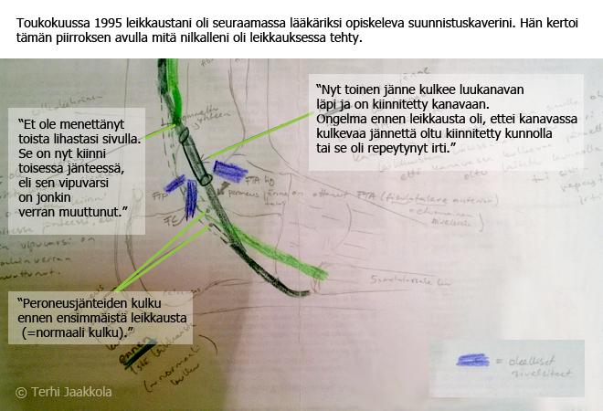 Peroneus Longuksen seikkailut Kuva: Terhi Jaakkola